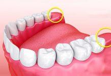 آیا لازم است دندانهای عقل خود را بکشید؟