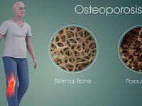 درمان پوکی استخوان با راهکارهای طلایی طب سنتی