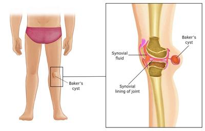 فیزیوتراپی در کیست بیکر, درمان کیست بیکر زانو