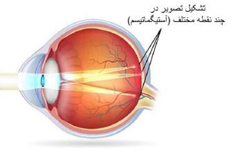 روش نگهداری لنز طبی, موارد مصرف لنز طبی