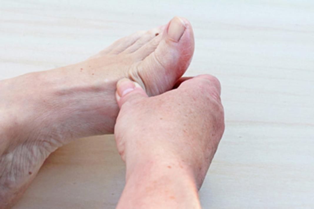 علل، علائم و درمان درد انگشتان پا